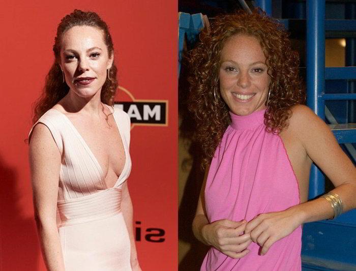 Silvia Marty antes y después